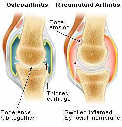 Hip joint pain relief with boron ends or reduces need for pain osteoarthritis and rheumatoid arthritis diagrams ccuart Gallery